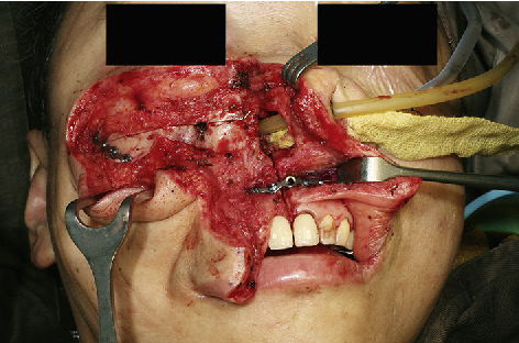 Figure 4 from Salvage surgery for nasopharyngeal cancer