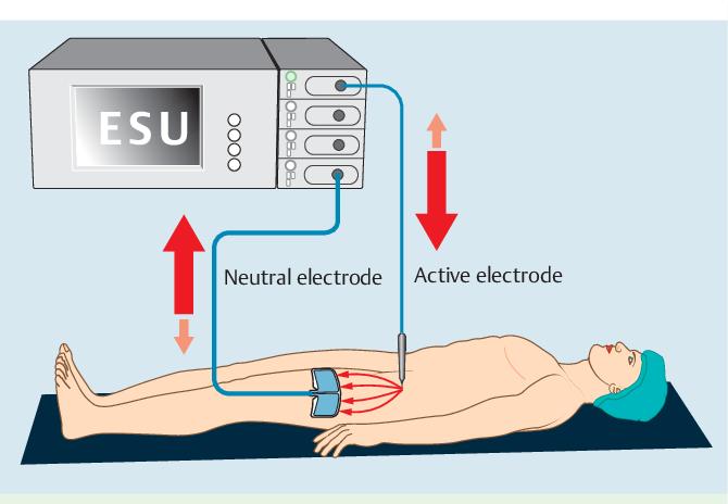 PDF] European Society of Gastrointestinal Endoscopy (ESGE