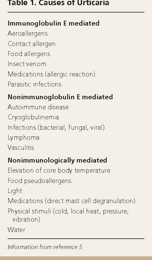 Table 1 from Urticaria: evaluation and treatment  - Semantic