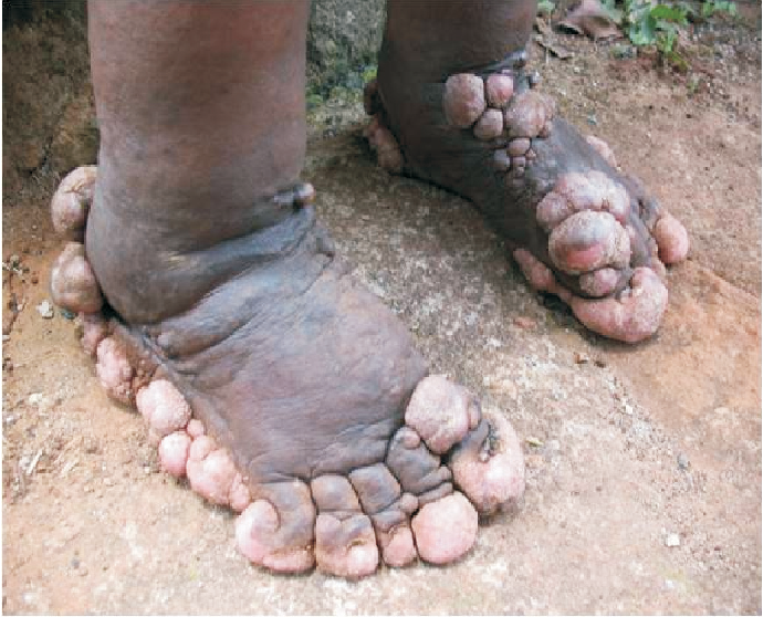 Pdf Epidemiology Of Elephantiasis With Special Emphasis On