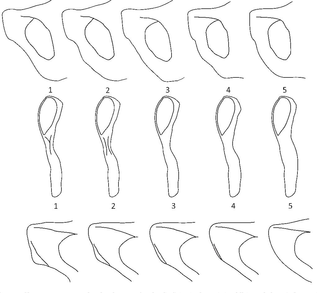 phenice method of sex estimation in Denver