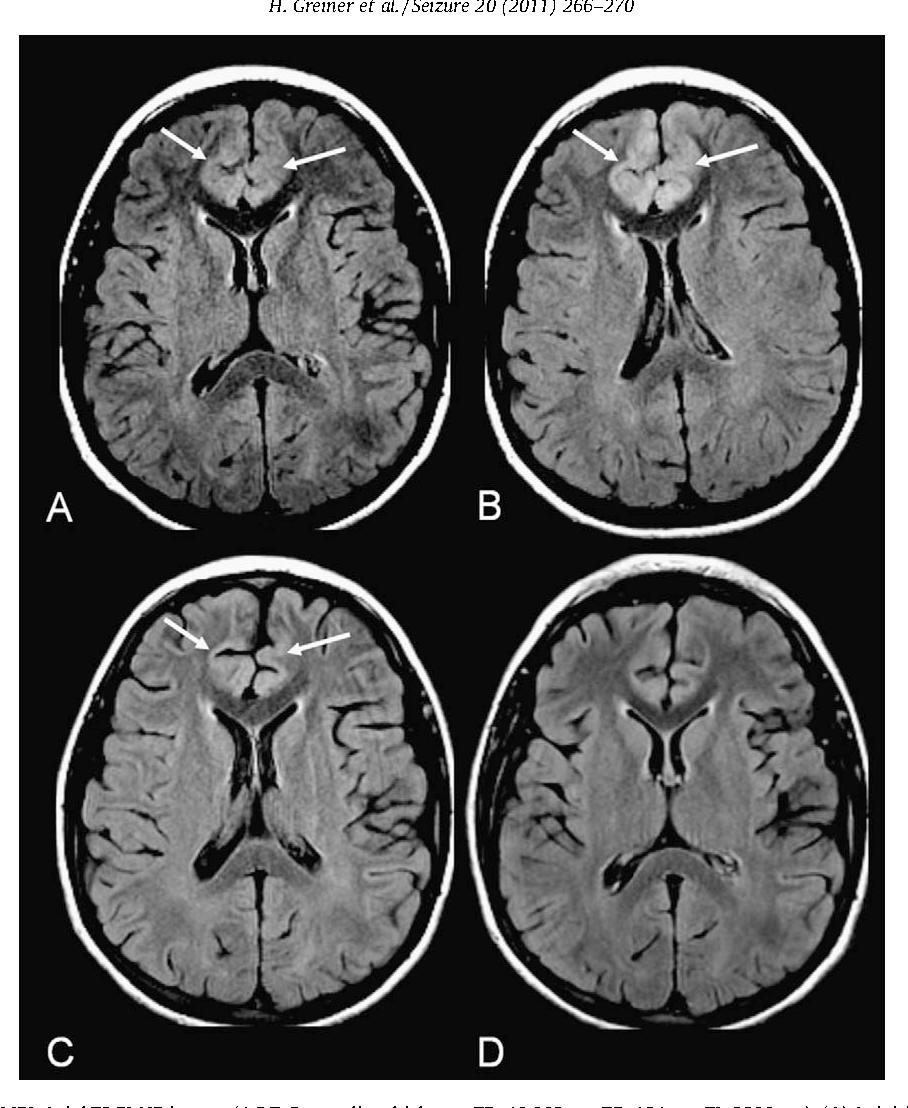 Figure 2 From Anti Nmda Receptor Encephalitis Presenting With