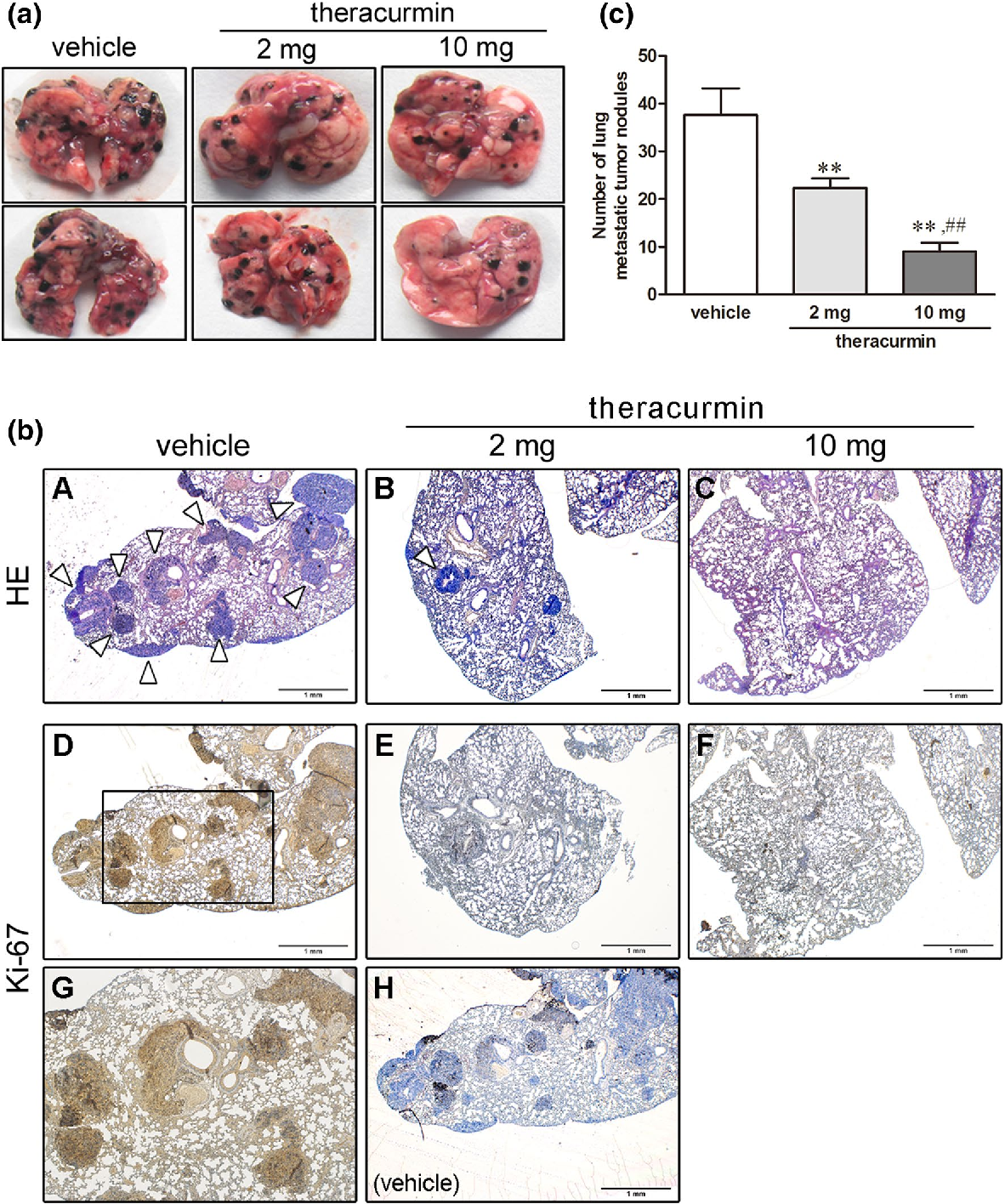 Tumor-growth curve of nude mice bearing A-549 cells