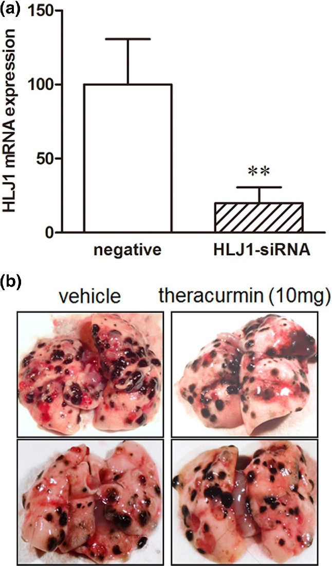 In vivo anticancer effects of Harmine on NSCLC mouse