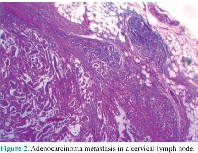 Cervical Lymphadenopathy As The First Presentation Of Sigmoid Colon Cancer Semantic Scholar