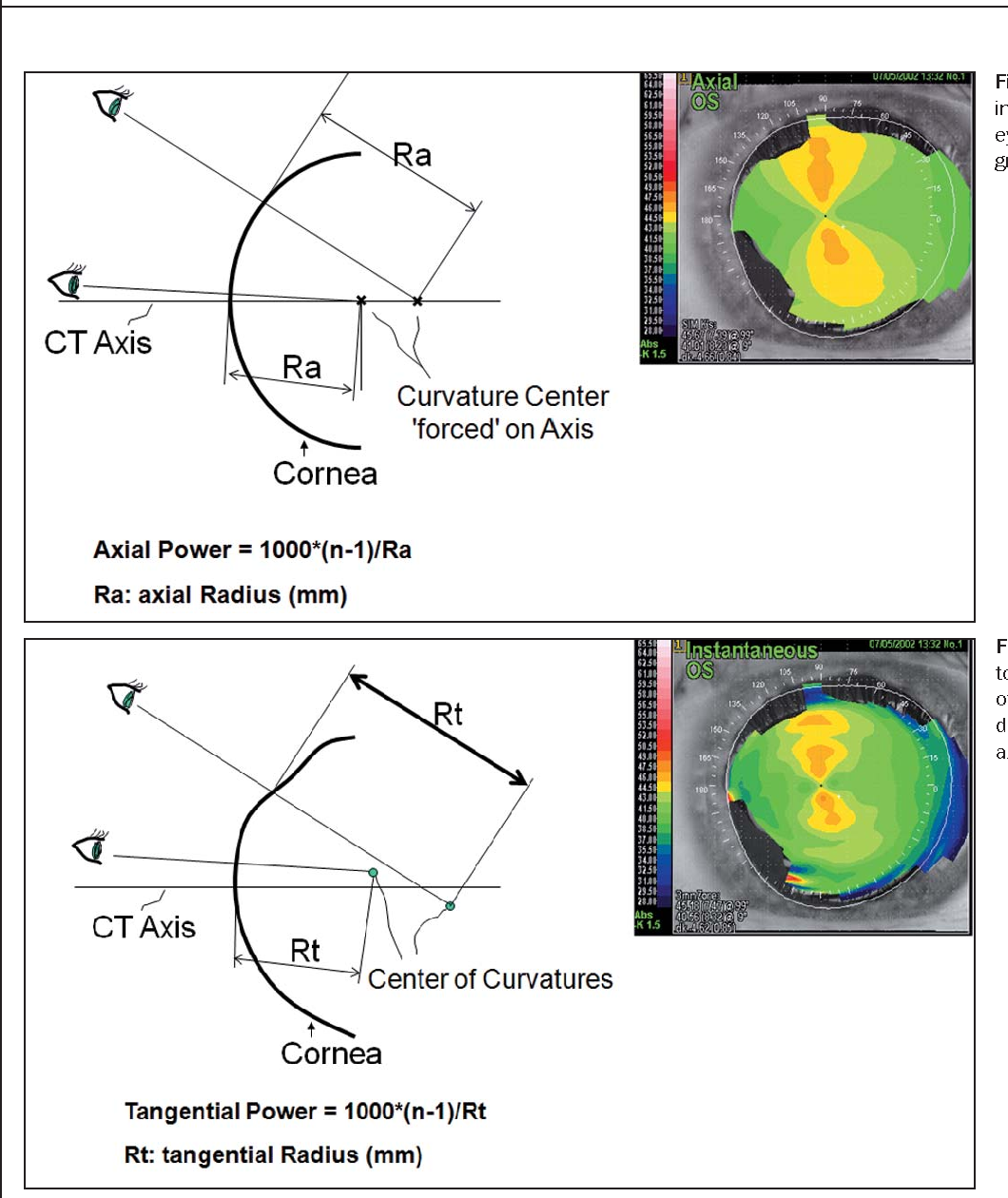 Figure 1 from Keratoconus detection using corneal topography ... on