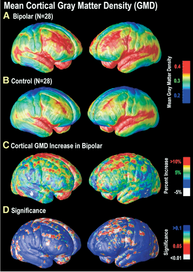 Gray Matter Density Increases During >> Figure 1 From Greater Cortical Gray Matter Density In Lithium