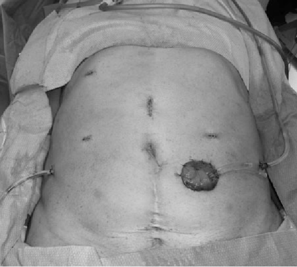 Figure 3 From First Report Robot Assisted Total Pelvic
