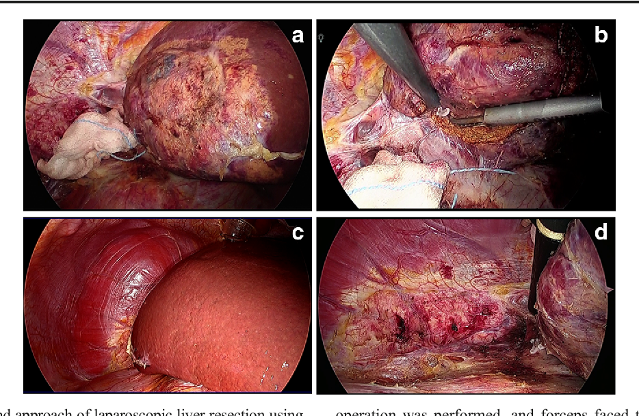 Fig. 3 Specific view and approach of laparoscopic liver resection using the intercostal port. a Lateral view: by inserting the laparoscope through the intercostal port, we were able to view the liver from the outside, with the area between the root area of the right hepatic vein to the entire length of the inferior vena cava in full vision. b Lateral approach: no blind