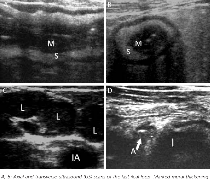 Figure 3 from Abdominal Ultrasound in Infectious Enteritis