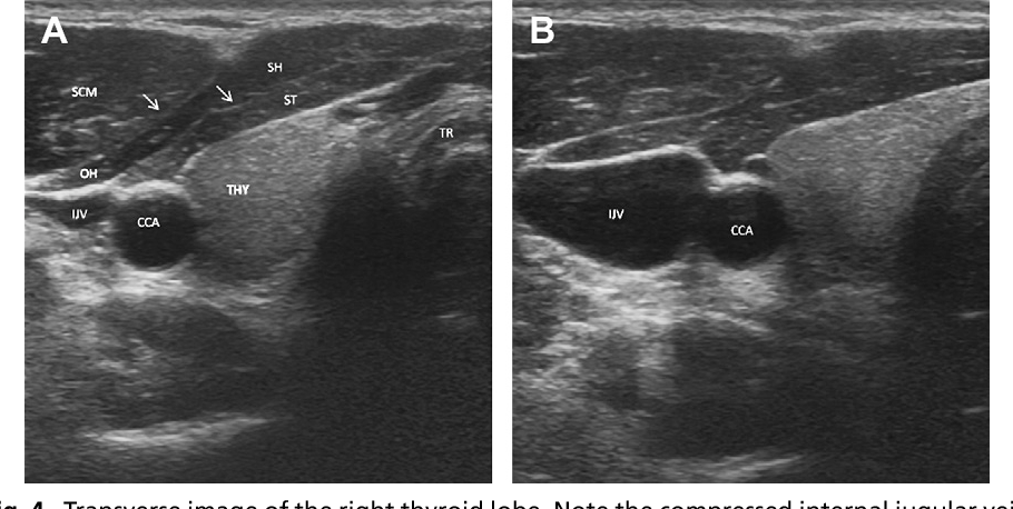 Figure 4 From Head And Neck Anatomy And Ultrasound Correlation