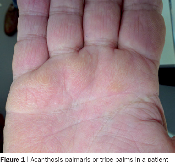 Figure 1 from Paraneoplastic syndromes in rheumatology