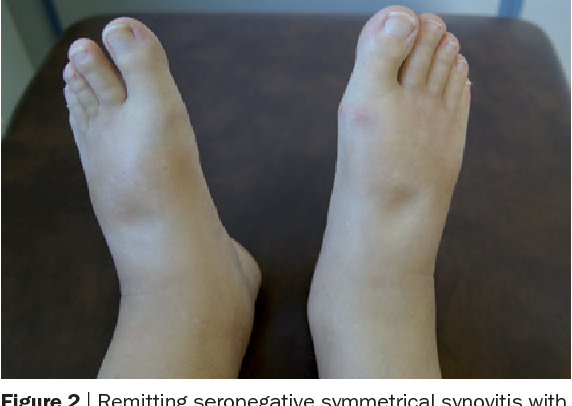 Figure 4 from Paraneoplastic syndromes in rheumatology