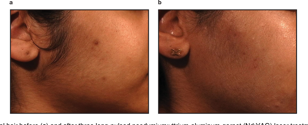 Figure 3 from Laser Treatment of Dark Skin - Semantic Scholar