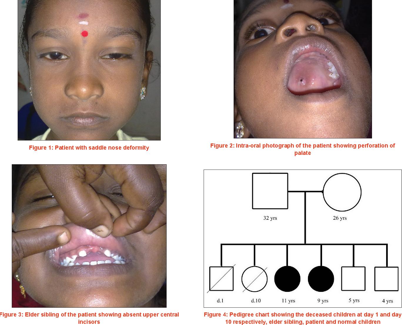Observance of Kassowitz law-late congenital syphilis ...  Congenital Syphilis Saddle Nose