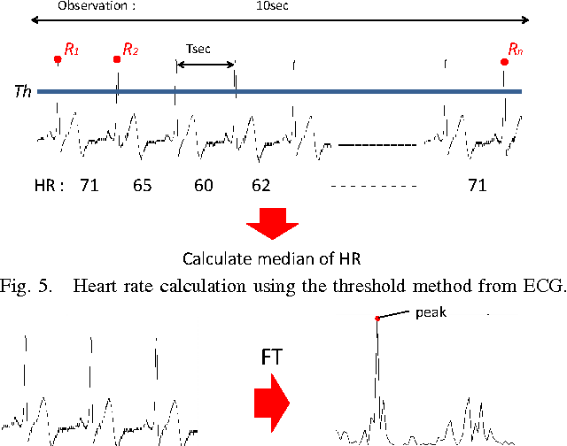 Figure 5 from Heart rate detection from waist ECG/PCG