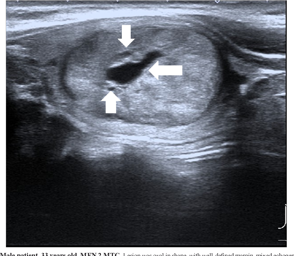 Pdf Ultrasonographic Characteristics Of Medullary Thyroid