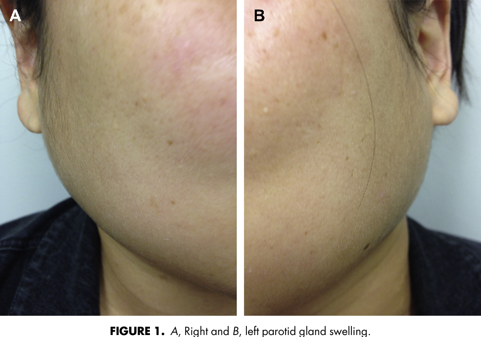 Bilateral Parotid Swelling in Polycystic Ovarian Syndrome
