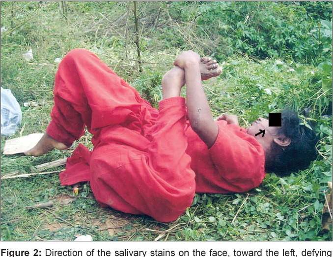 Figure 2 from Rigor mortis in an unusual position: Forensic