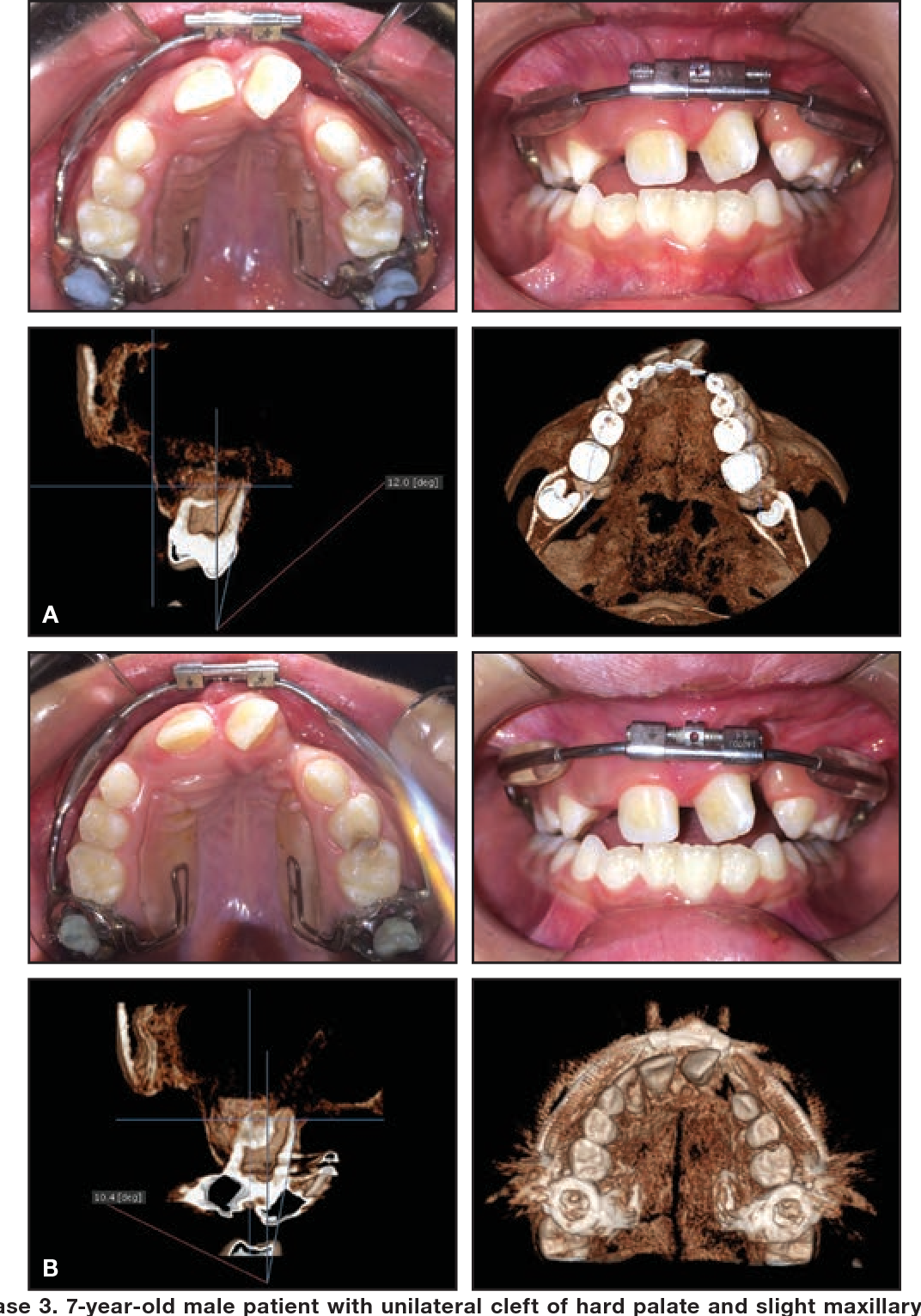 Figure 5 from A Vestibular Rapid Palatal Expander should not