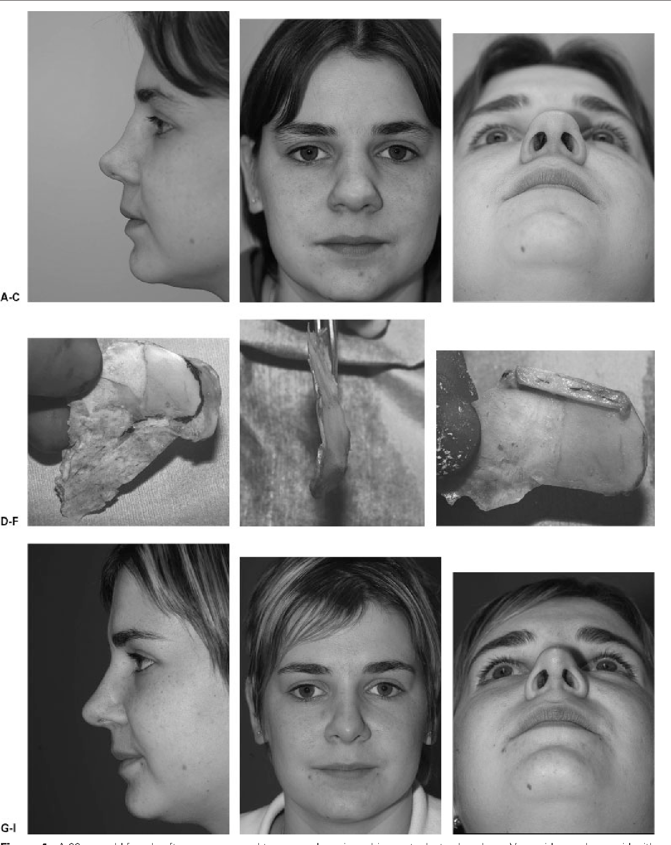 Figure 4 from Twenty-five years experience with