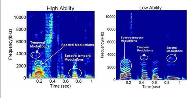 Figure 1 From Are You A Good Mimic Neuro Acoustic Signatures For Speech Imitation Ability Semantic Scholar