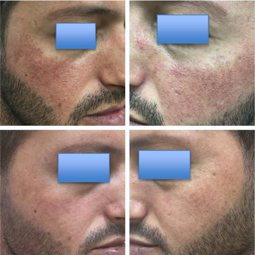 Figure 3 from Treatment of erythematotelangiectatic rosacea