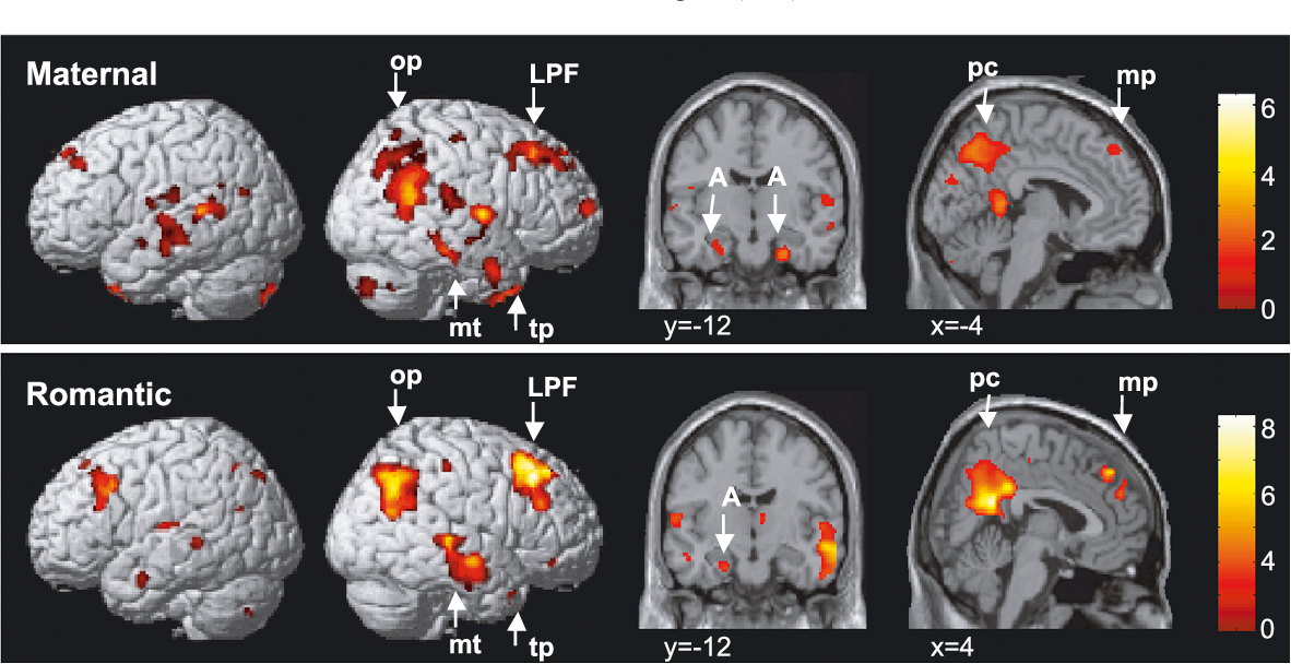 The neural correlates of maternal and romantic love | Semantic Scholar
